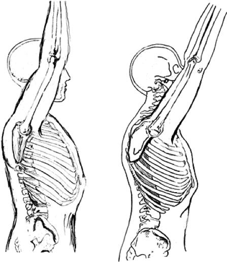 Изменение механики сгибания плеча при наличии сутулости в грудном отделе и протракции лопаток (справа) по сравнению с нормой (слева)