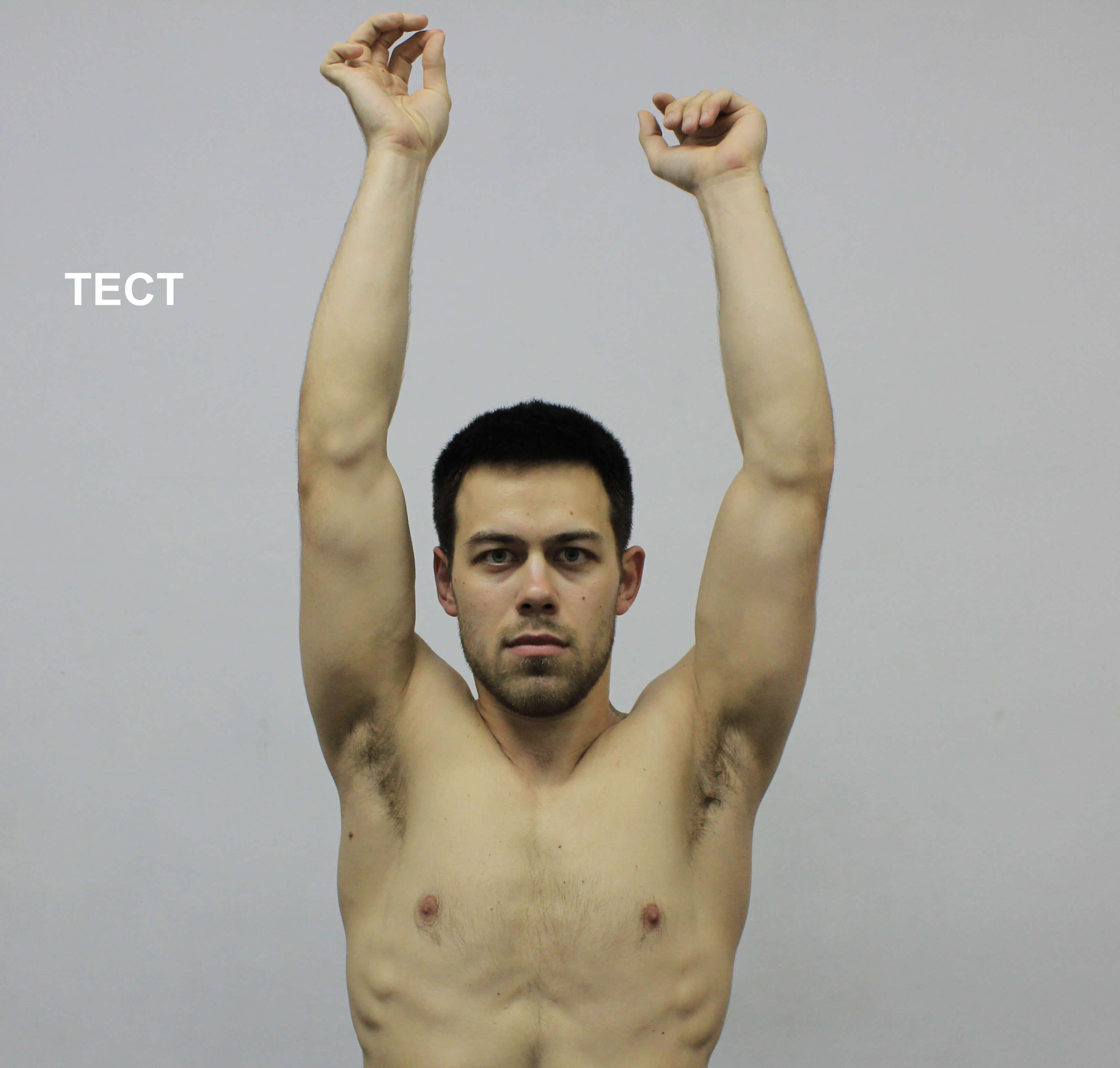 Рис. 12. Тест на растяжимость длинной головки трицепса. Пояснения в тексте. Для примера показан положительный результат теста на левой руке по сравнению с нормой на правой стороне